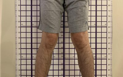 7 Most Effective Exercises for Knock Knees to Prevent Operation