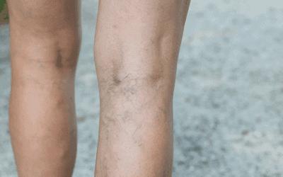 Best 5 Exercises to Prevent Deep Vein Thrombosis (DVT)